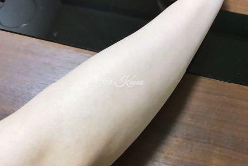 ミラブル使用後の腕